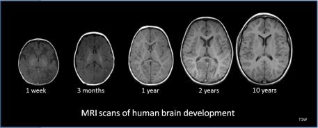 Human_brain_development_1wk-3mo-1yr-2yr-10yr-T1W-MRI